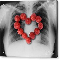 Raspberries, Heart-healthy Fruit Acrylic Print by Gwen Shockey