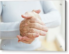 Senior Woman's Hands Acrylic Print by Science Photo Library