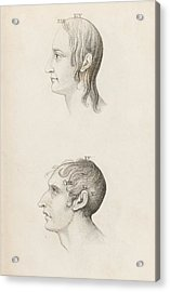 Skull Comparisons In Phrenology Acrylic Print by King's College London
