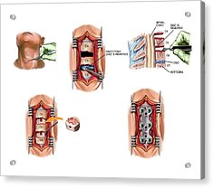 Surgery To Fuse The Cervical Spine Acrylic Print