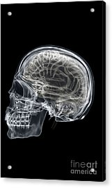 The Skull And Brain Acrylic Print
