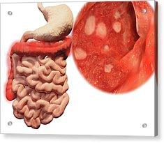Ulcerative Colitis Acrylic Print