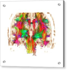 White Matter Fibres Acrylic Print by Zephyr