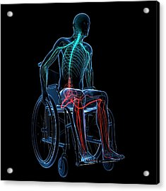 Man In A Wheelchair Acrylic Print by Sciepro/science Photo Library