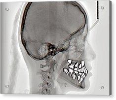 Normal Teeth Acrylic Print by Zephyr