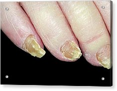 Fungal Nail Infection Acrylic Print by Dr P. Marazzi/science Photo Library