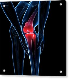 Painful Knee Acrylic Print by Sciepro/science Photo Library
