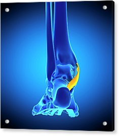 Foot Ligament Acrylic Print by Sebastian Kaulitzki/science Photo Library