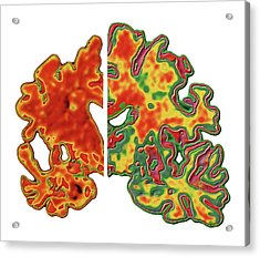 Alzheimer's Brain Acrylic Print by Alfred Pasieka