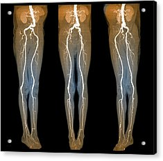 Arterial Aneurysm Acrylic Print by Zephyr