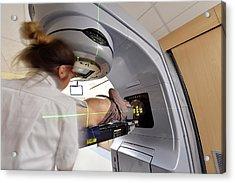Bladder Radiotherapy Acrylic Print