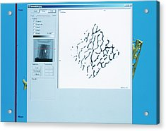 Bone Biopsy Acrylic Print