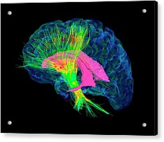 Brain Fibres Acrylic Print