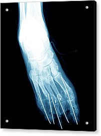 Bunion After Surgery Acrylic Print