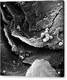 Candida Acrylic Print by David M. Phillips