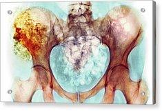 Chondrosarcoma Acrylic Print by Mike Devlin