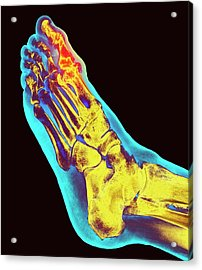 Degenerative Foot Deformation Acrylic Print