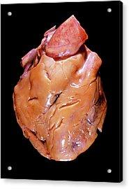 Fatty Heart Acrylic Print by Pr. R. Abelanet - Cnri