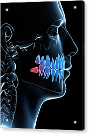 Impacted Wisdom Tooth Acrylic Print