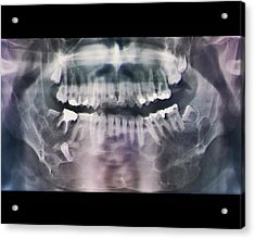 Jaw Cancer (ameloblastoma) Acrylic Print by Zephyr/science Photo Library