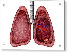 Lung Cancer Acrylic Print by Carol & Mike Werner