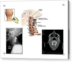 Surgery To Fuse The Cervical Spine Acrylic Print by John T. Alesi