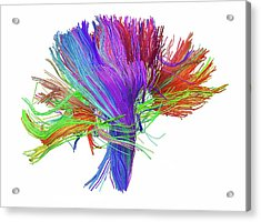 White Matter Fibres Of The Human Brain Acrylic Print