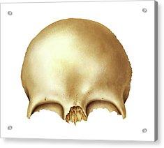 Frontal Bone Acrylic Print