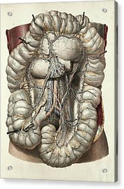 Large Intestine Acrylic Print by Science Photo Library