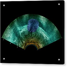 Prostate Tumour Acrylic Print by Zephyr/science Photo Library