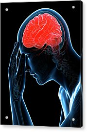 Headache Acrylic Print by Sciepro/science Photo Library
