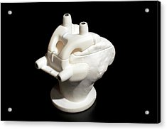3d Printed Orthopaedic Cutting Guide Acrylic Print by Michael J. Ermarth/food & Drug Administration