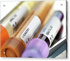 Blood And Other Samples For Testing Acrylic Print by Tek Image