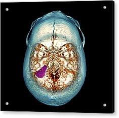 Brain Tumour Acrylic Print