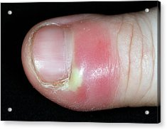 Paronychia Infection Of The Thumb Acrylic Print by Dr P. Marazzi/science Photo Library