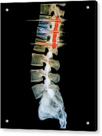 Pinned Spinal Fracture Acrylic Print by Zephyr