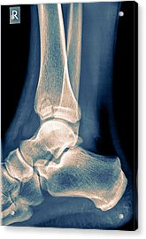 Ankle X-ray Acrylic Print by Photostock-israel