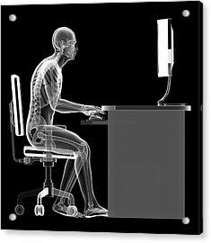 Person Sitting With Incorrect Posture Acrylic Print by Sebastian Kaulitzki
