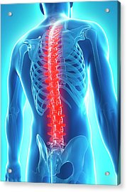 Back Pain Acrylic Print by Sciepro/science Photo Library