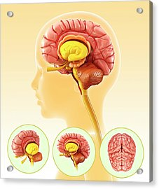 Child's Brain Anatomy Acrylic Print by Pixologicstudio/science Photo Library