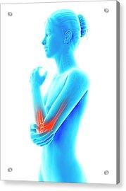 Human Elbow Joint Pain Acrylic Print by Sebastian Kaulitzki