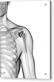 Human Shoulder Replacement Acrylic Print by Sebastian Kaulitzki