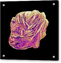 Kidney Stone Acrylic Print