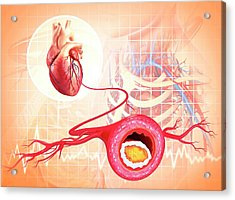 Atherosclerosis Acrylic Print by Pixologicstudio/science Photo Library