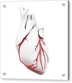 Coronary Arteries Acrylic Print by Sciepro/science Photo Library