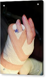 Dupuytren's Contracture Surgery Acrylic Print by Dr P. Marazzi/science Photo Library