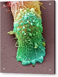 Skin Cancer Cell Acrylic Print by Steve Gschmeissner