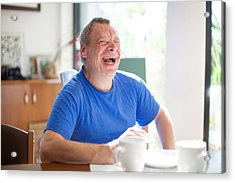Adult Man Portrait With A Down Syndrome Acrylic Print by CasarsaGuru
