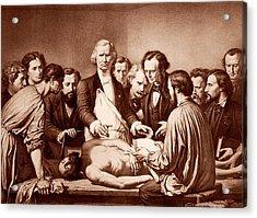 Anatomy Lesson By Velpeau Acrylic Print
