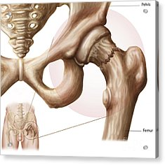 Anatomy Of Hip Fracture Acrylic Print by Stocktrek Images